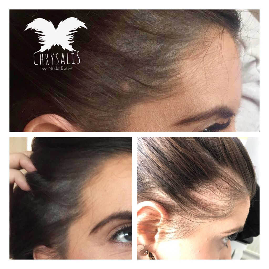 Scalp Tattooing for Alopecia