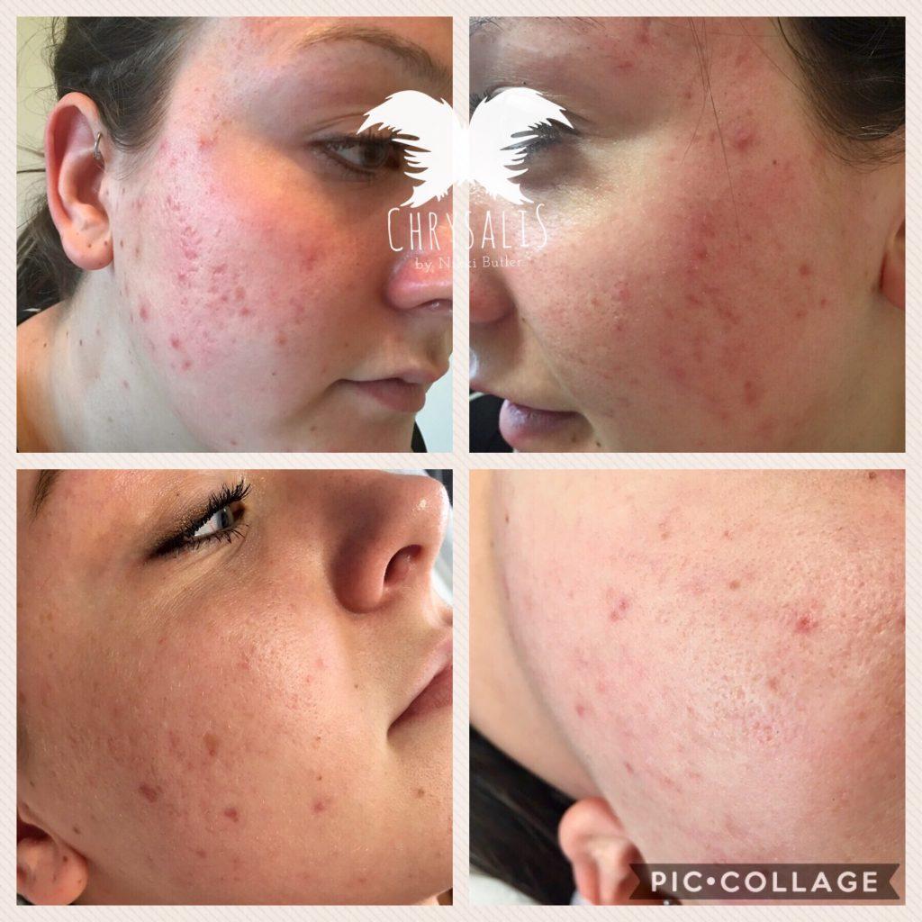 Skin Rejuvenation Acne Scarring
