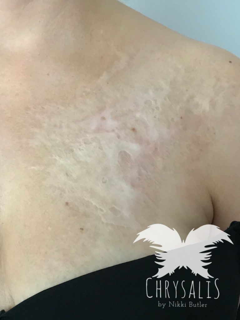 Micro Needling for Burns