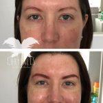 Permanent Eyebrows Correction