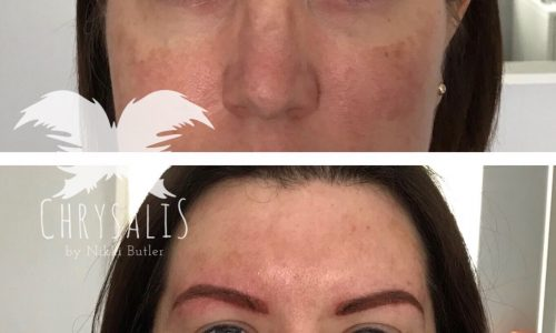 Permanent Eyebrows Correction