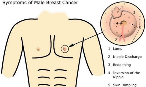 Male Breast Cancer signs
