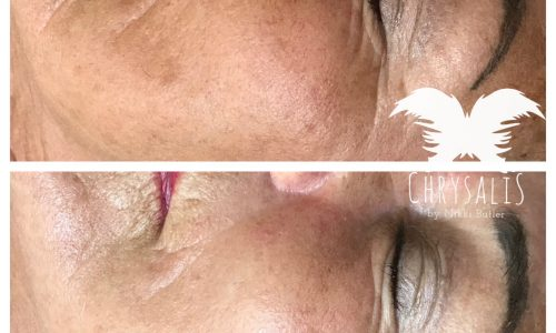 The Secret to Glowing Skin