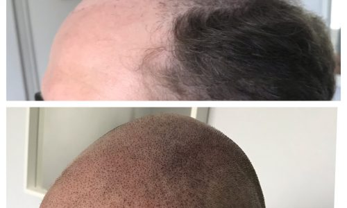 scalp tattoo transformation