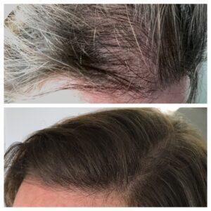 female scalp tattooing