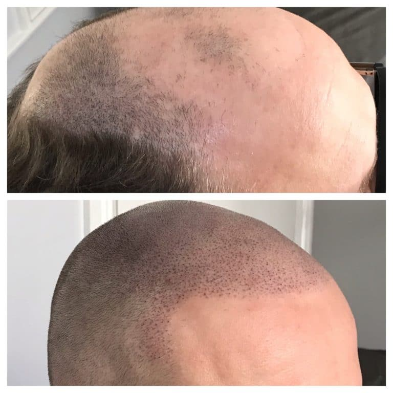 scalp micropigmentation male
