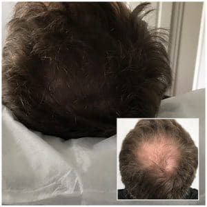 scalp tattooing cost