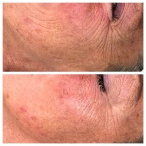 mesotherapy collagen facial