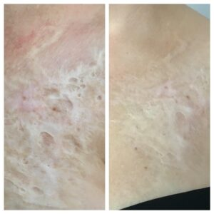 scar treatment micro needling