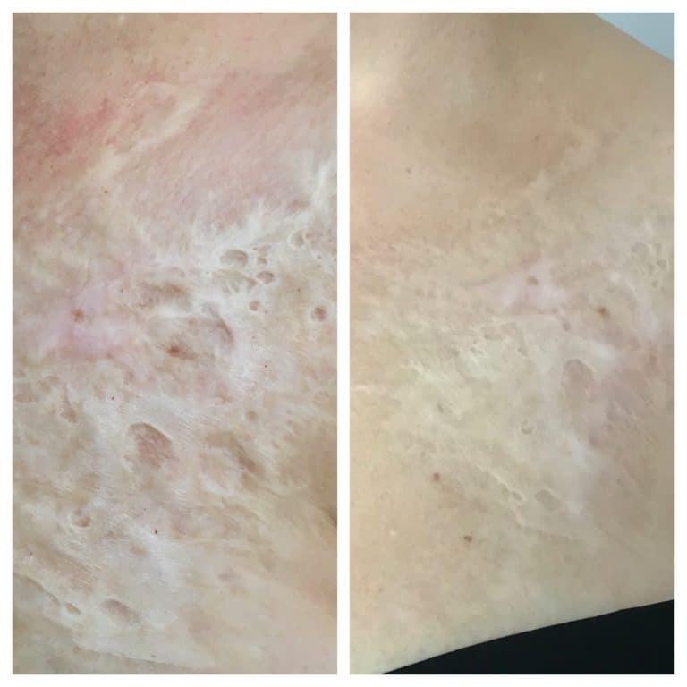 MCA Scar Treatment Dry Needling