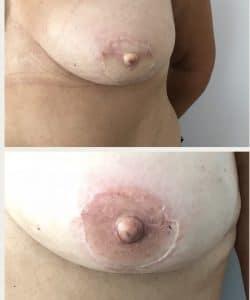 Medical Tattoo Areola