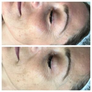 Mesotherapy Collagen Facial