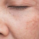hyperpigmentation treatments