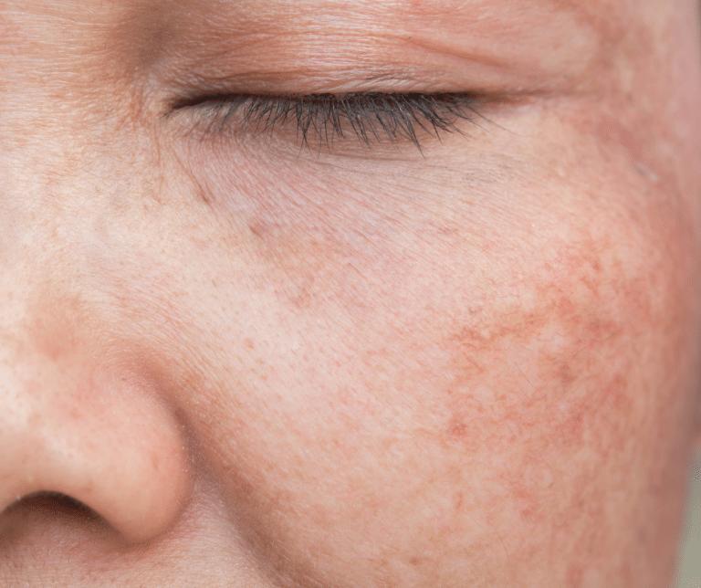hyperpigmentation treatments