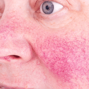 best rosacea treatment