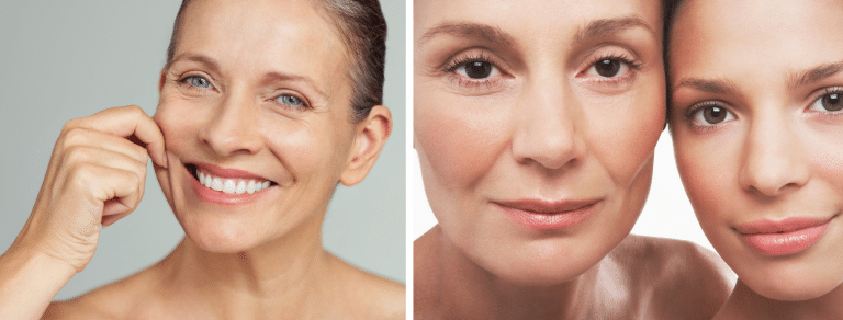 microneedling aftercare