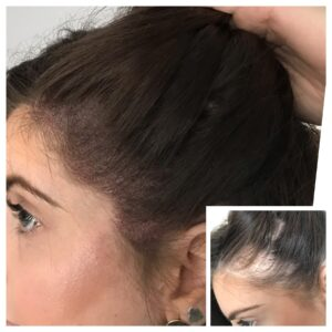 Scalp Micropigmentation alopecia