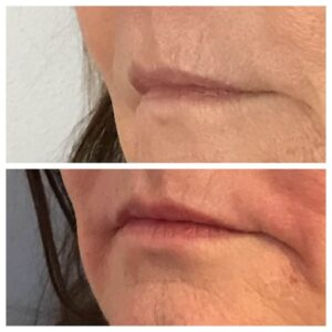 natural lip fillers before and after