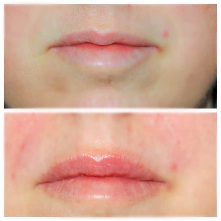naturally fuller lips before and after