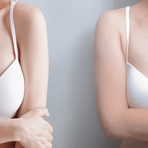 non surgical ways to reduce areola