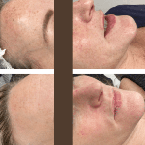 antiaging facial hampshire
