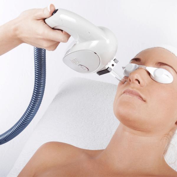 lady having IPL scar treatment