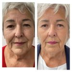 lady's face after 2 IPL and 1 HIFU treatments