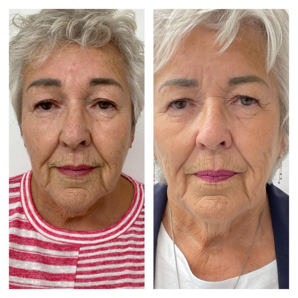 face after 2 x IPL photo facial treatments and 1 x HIFU