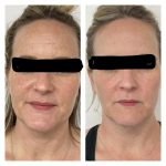 before and after of 2 IPL photofacials and 1 RF microneedling treatment