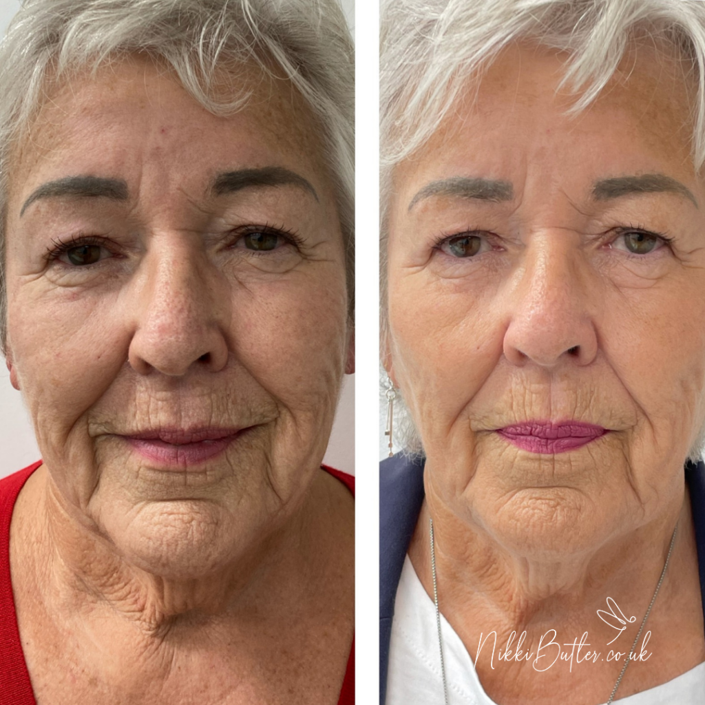 lady before and after HIFU facial