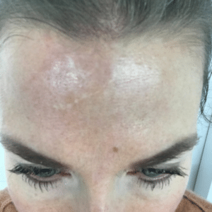 scar on forehead before RF microneedling