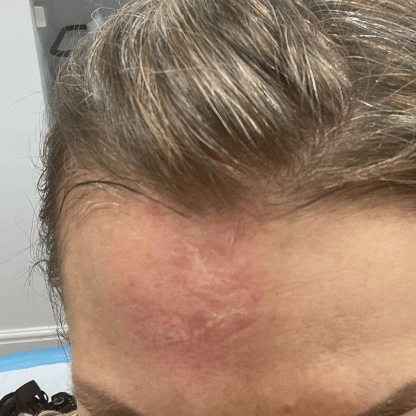 facial scar after rf microneedling