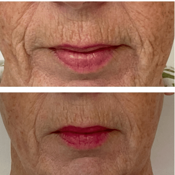 before and after one rf microneedling treatment lower face