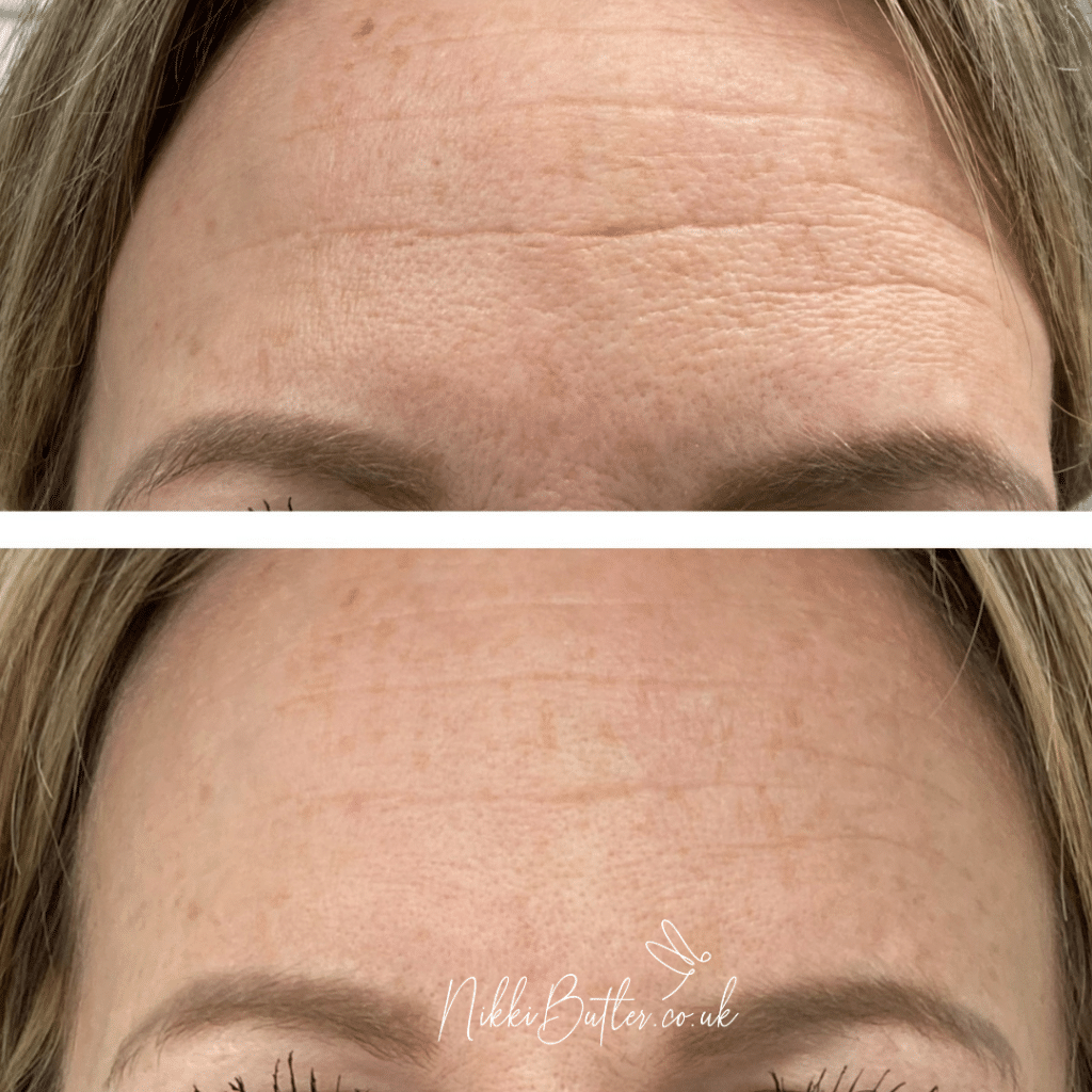 forehead lines before and after one RF microneedling treatment