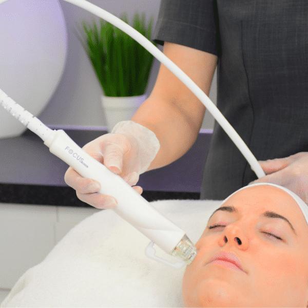 a lady having an rf microneedling treatment