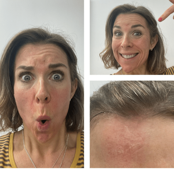 Nikki after RF microneedling facial