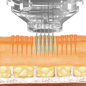 electroporation micro needling treatment diagram
