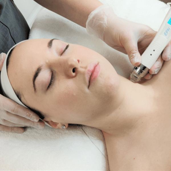 lady having micro needling facial treatment