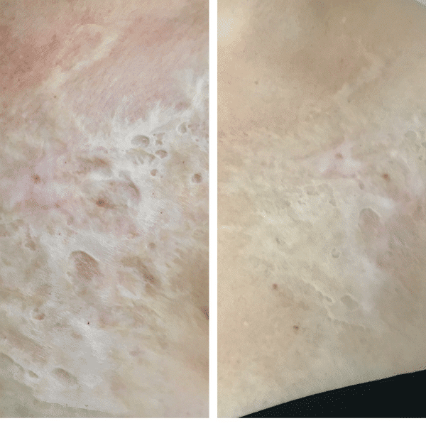 burn scar before and after micro needling