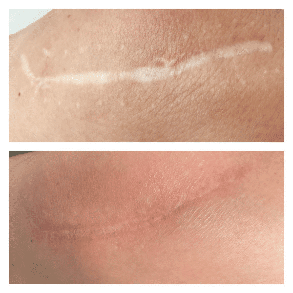 before and after RF microneedling scar treatments on knee