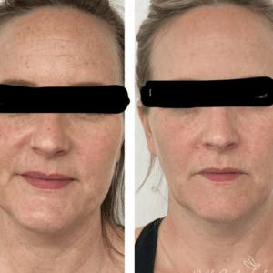 skin care tips for IPL photofacial