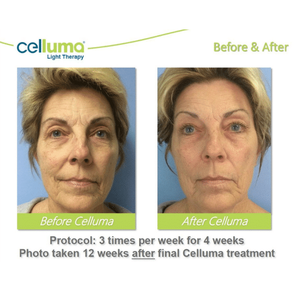 Celluma LED Light therapy facial before and after