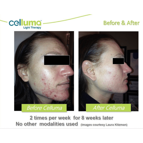 Celluma LED Light therapy before and after for acne